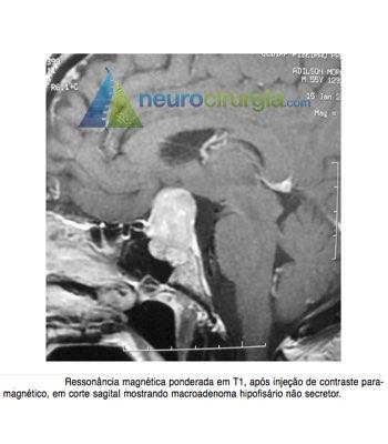 neurocirurgia, neuroendoscopia, cirurgia cerebral, tumor cerebral, neuro, cirurgia neurológica, cirurgia de coluna, cranio, neurocirurgiao, neurocirurgia, neurocirurgião, cirurgia minimamente invasiva, cistos, válvula, cisto cerebral