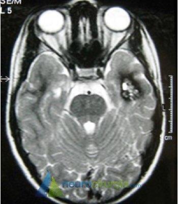 cavernoma, angioma cavernoso, SNC, hemorragia cerebral, mal-formação arteriovenosa, criptogênica, neurocirurgia, neurocirurgia, neuroendoscopia, cirurgia cerebral, tumor cerebral, neuro, cirurgia neurológica, cirurgia de coluna, cranio, neurocirurgiao, neurocirurgia, neurocirurgião, cirurgia minimamente invasiva, cistos, válvula, cisto cerebral