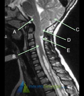 Malformação de Arnold-Chiari tipo 1 (Chiari 1), Chiari, hidrocefalia, neuroendoscopia, neurocirurgia, cirurgia de Chiari, chiari neurocirurgiao, tenho chiari, especialista chiari, siringomielia, seringomielia, siringobulbia, hidromielia, hidrosiringomielia