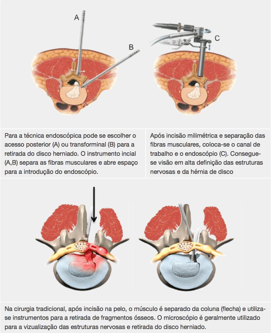 endoscopia, neuroendoscopia, cirurgia endoscópica da coluna, endoscopia pra hernia de disco, hérnia de disco, Cirurgia Minimamente Invasiva, especialista coluna, lombalgia, cirurgia da coluna, hernia de disco a laser, laser, radiofrequencia, mínima invasão, mínima agressão