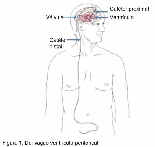 Tratamento hidrocefalia (hidroencefalia), hidrocefalia, DVP, derivação, neurocirurgia, neuroendoscopia, válvula, ventriculostomia, endoscopia cerebral, tratamento sem válvula
