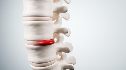 O tratamento conservador através da atividade física na hérnia de disco lombar