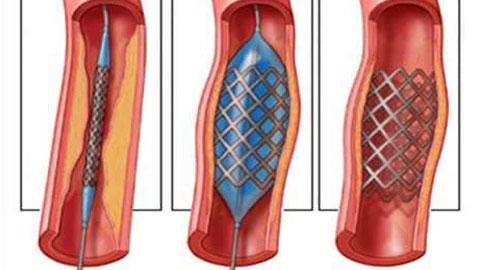 angioplastia-de-carotida