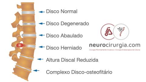 Desgaste do Disco Intervertebral
