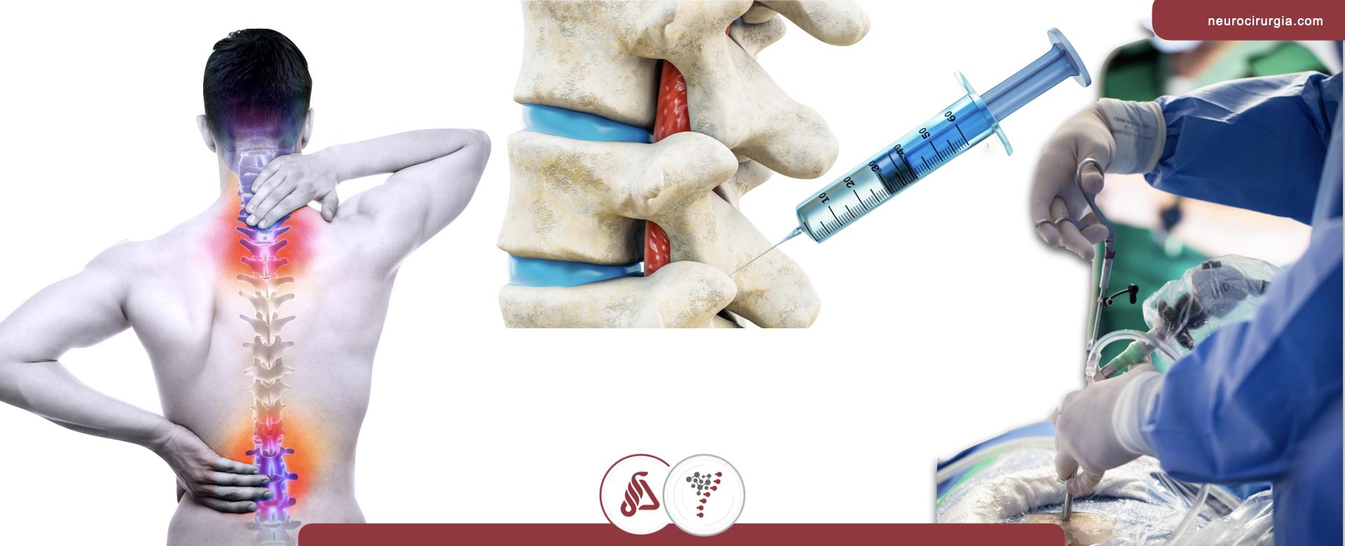 Rizotomia facetária por endoscopia